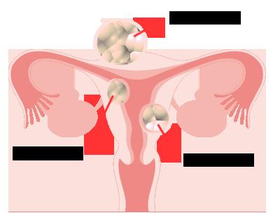 お 子宮 なら 筋腫