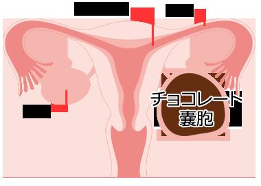 膜 症 内 症状 子宮